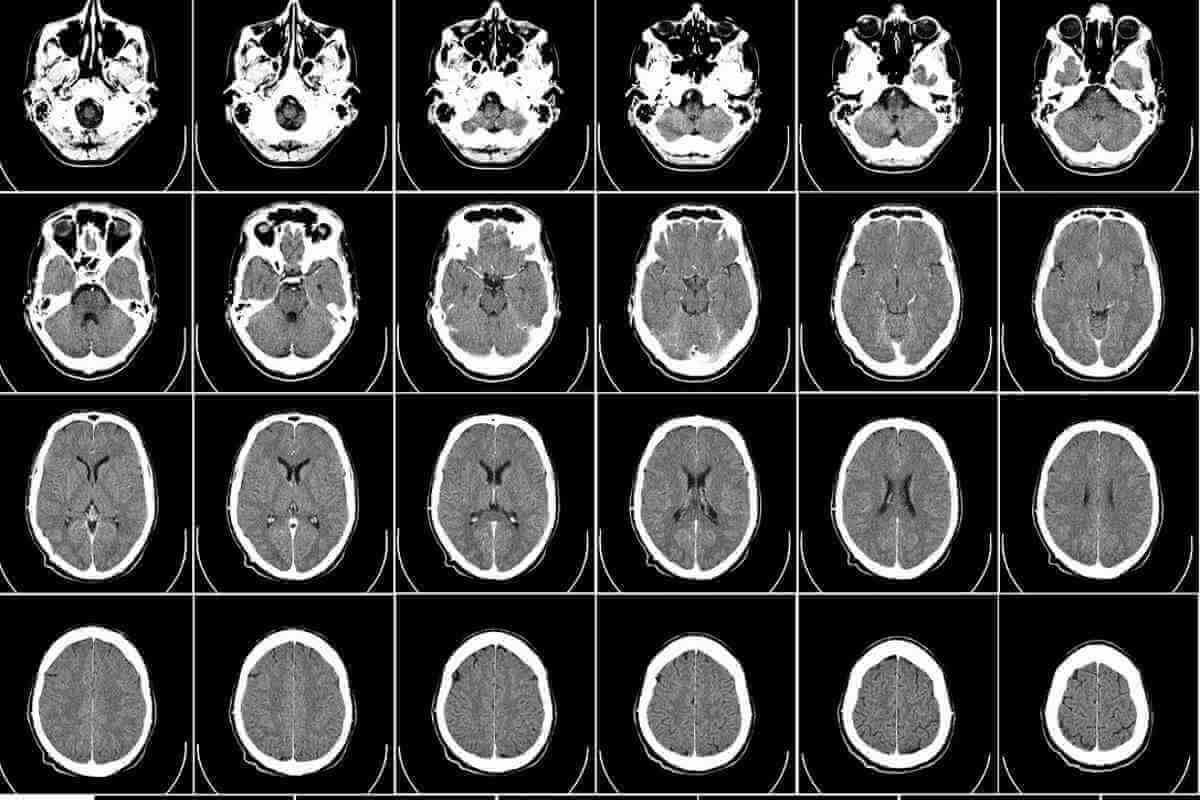 Computer Tomographie eines menschlichen Gehirns.