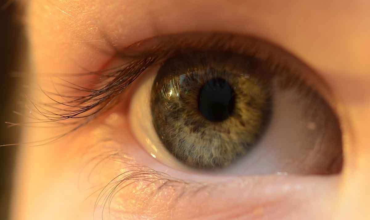 Zurich Eye