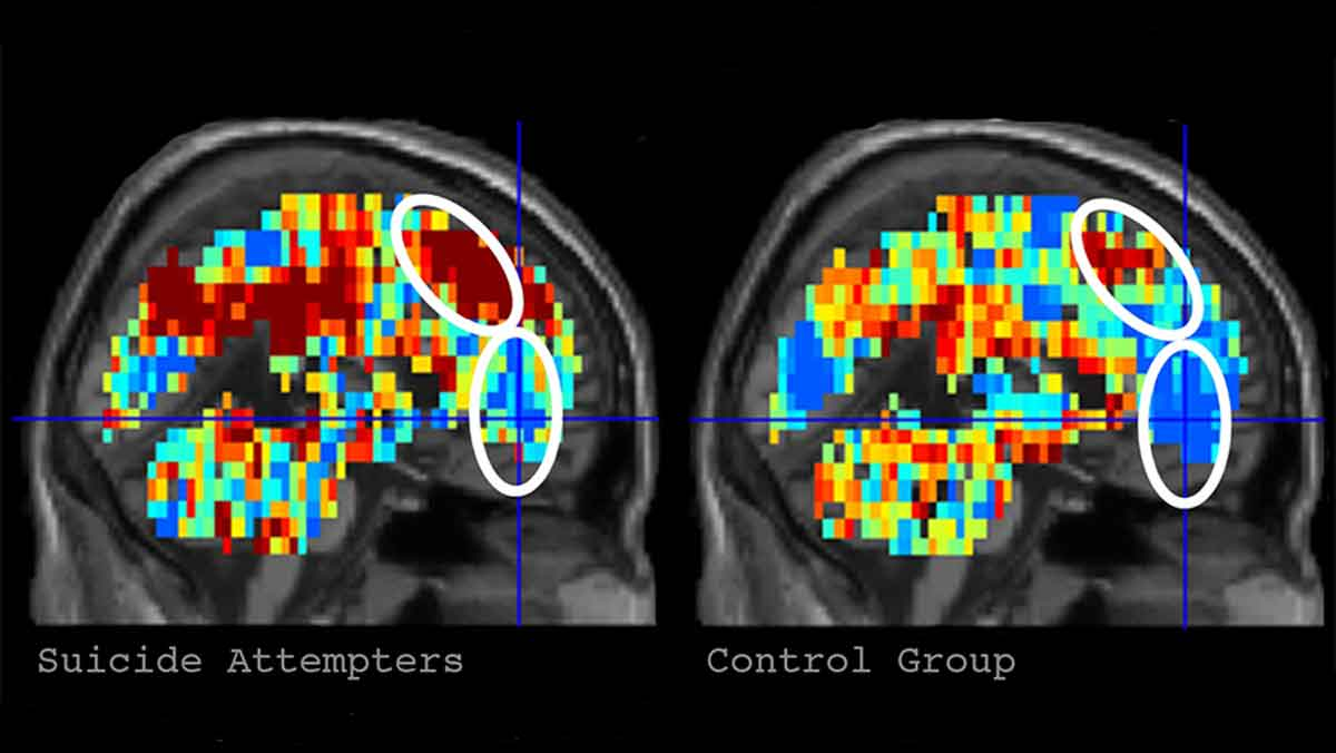 Zukünftig könnten KI-Systeme bei Untersuchungen anhand von Gehirnscans analysieren, ob ein Mensch selbstmordgefährdet ist. In einer Studie konnte ein Algorithmus selbstmordgefährdete Menschen anhand von neuronalen Mustern mit hoher Präzision kategorisieren.