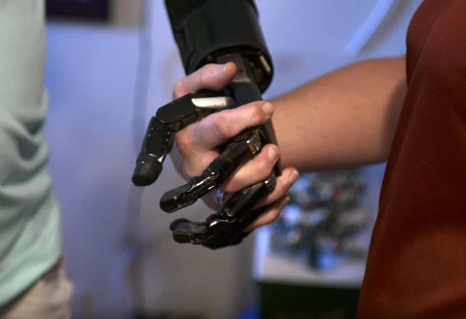 Der US-Amerikaner Johnny Matheny nutzt als erster Mensch eine gedankengesteuerte Armprothese im Alltag.