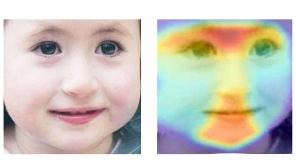 Genfehler hinterlassen maschinell lesbare Merkmale in menschlichen Gesichtern.