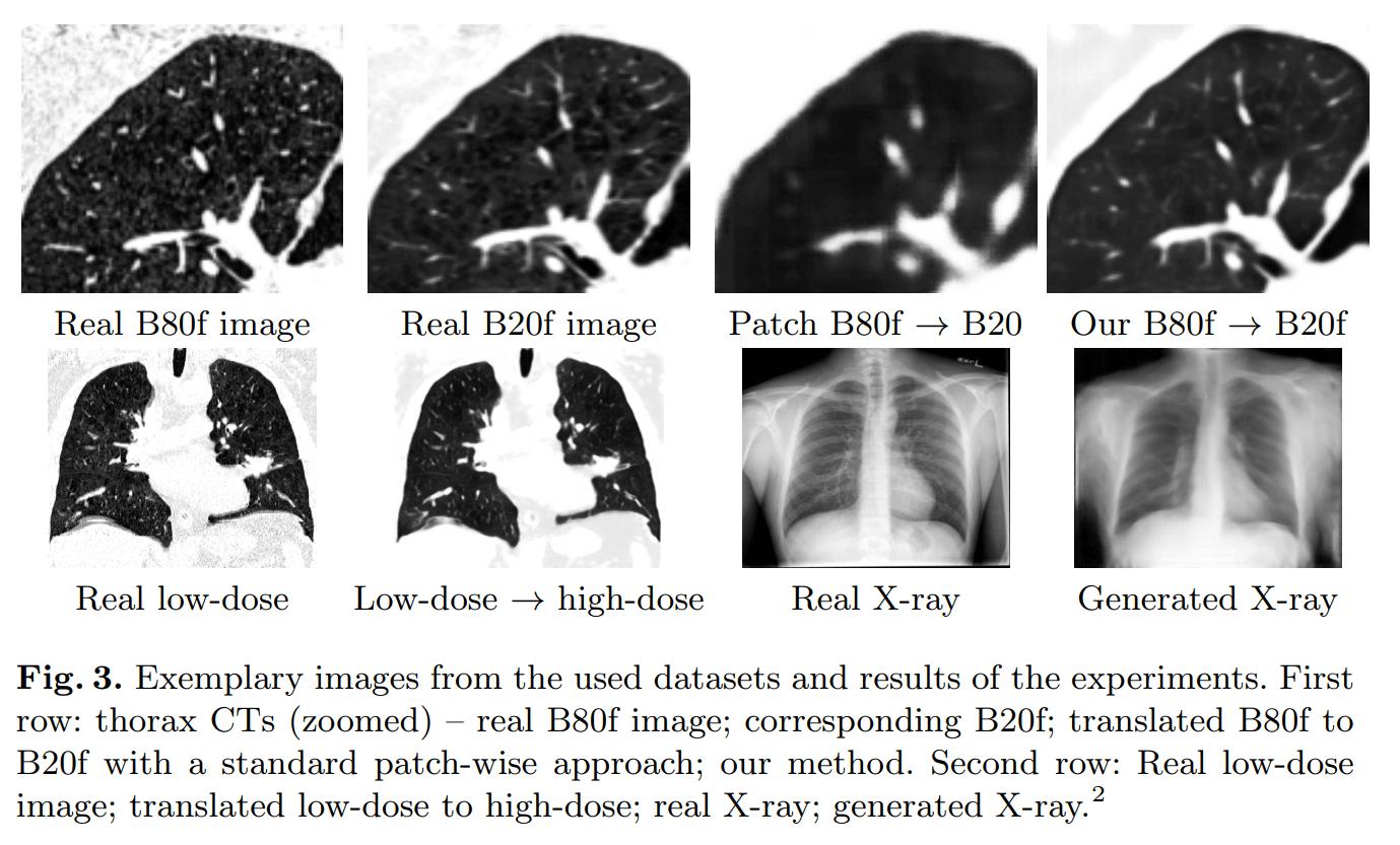 Beispiele für medizinische KI-Bilder im Vergleich zu Originalaufnahmen. Bild: Universität Lübeck