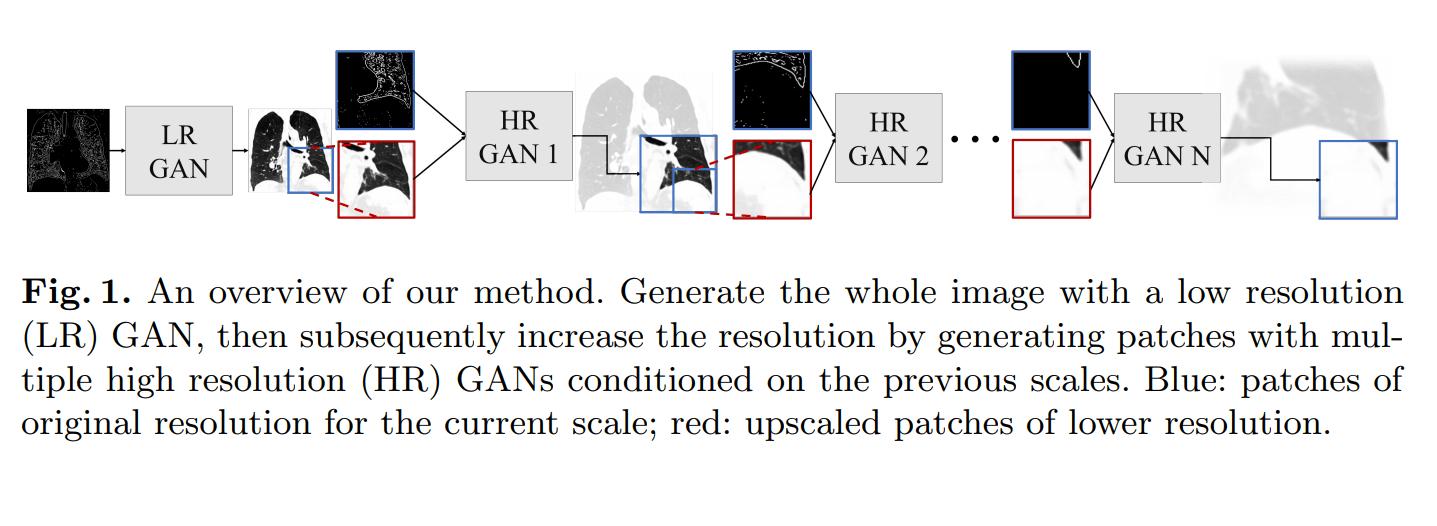 Das Multi-GAN-Verfahren erhöht die Detailauflösung einzelner Ausschnitte einer künstlich generierten medizinischen Aufnahme in mehreren Schritten. Bild: Universität Lübeck