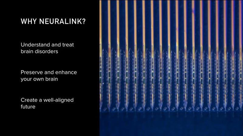 Weshalb Neuralink existiert. Bild: Neuralink