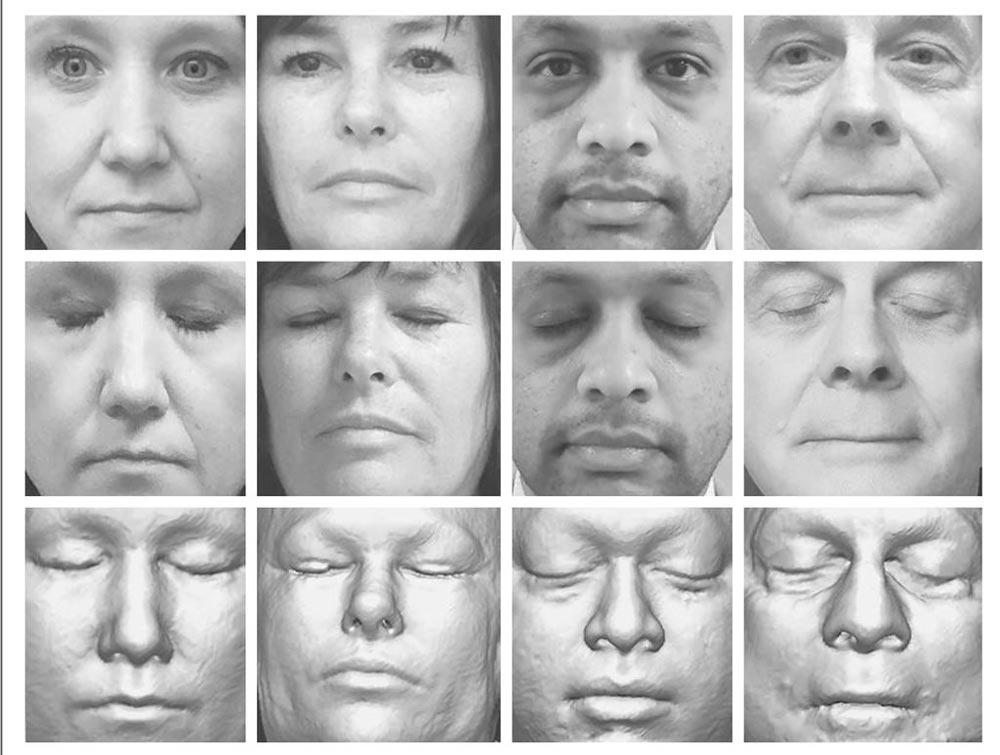 Die Gesichter unten sind digitale Rekonstruktionen anhand eines MRT-Scans. Die Bilder oben sind Originalfotos, denen sie zugeordnet werden konnten. Bild: Mayo Clinic, via the New England Journal of Medicine