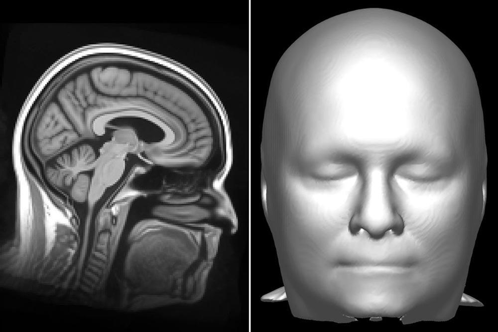 Studie: KI identifiziert Gesichter korrekt anhand eines Hirnscans
