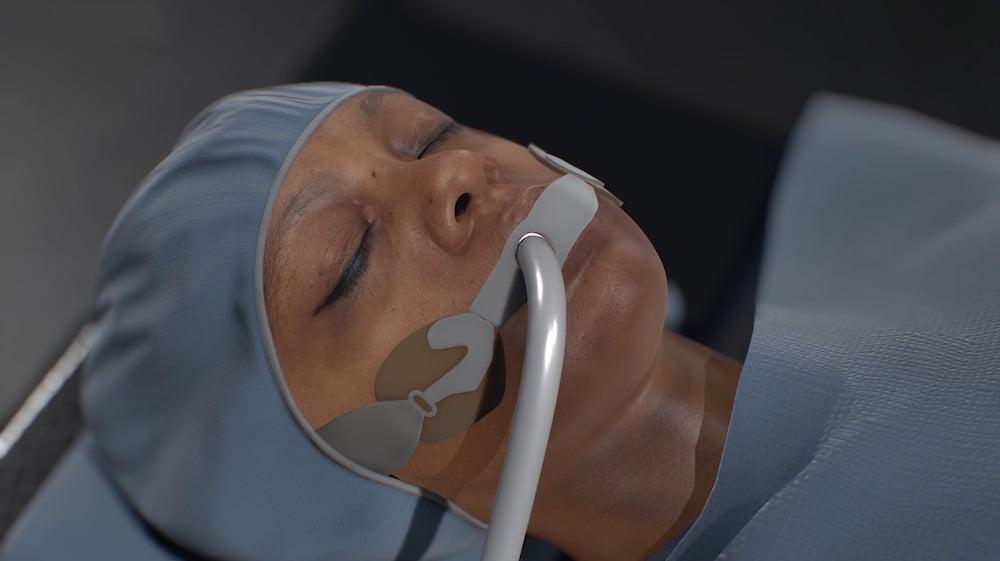 Osso VR will sich durch hohen grafischen Realismus bei VR-Chirurgentrainings von der Konkurrenz abheben.