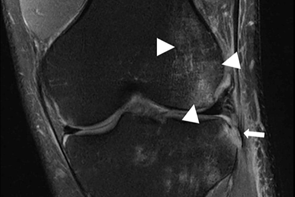 Von KI rekonstruiertes Knie-MRT-Bild