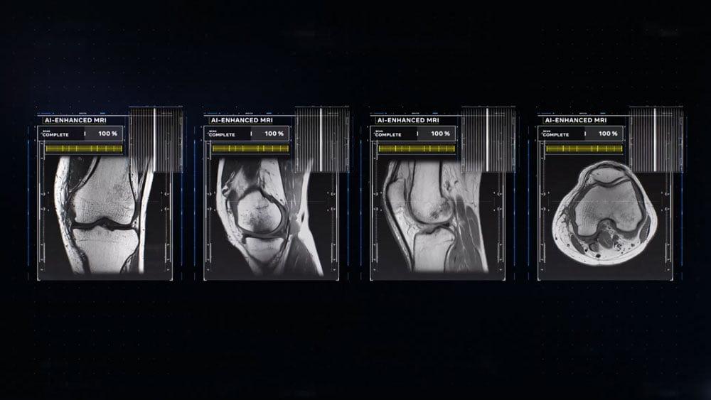Fünf Bilder einer Knie-MRT