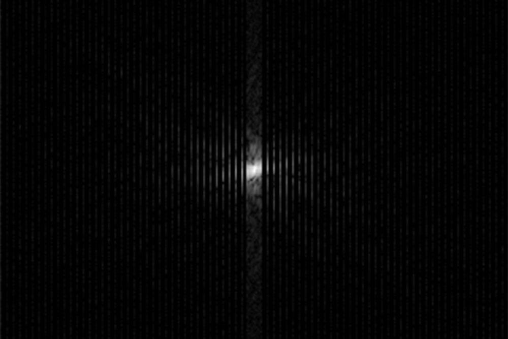 k-Raum-Daten einer MRT-Aufnahme