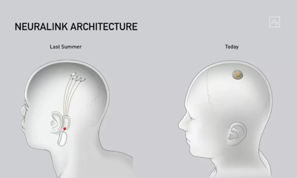 Im Vergleich zur ersten Version im vergangenen Sommer ist der Neuralink-Chip kompatker geworden. | Bild: Neuralink / Screenshot