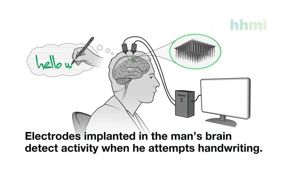 KI-Hirninterface: Versuchsperson schreibt 90 Zeichen pro Minute per Gedankenkraft