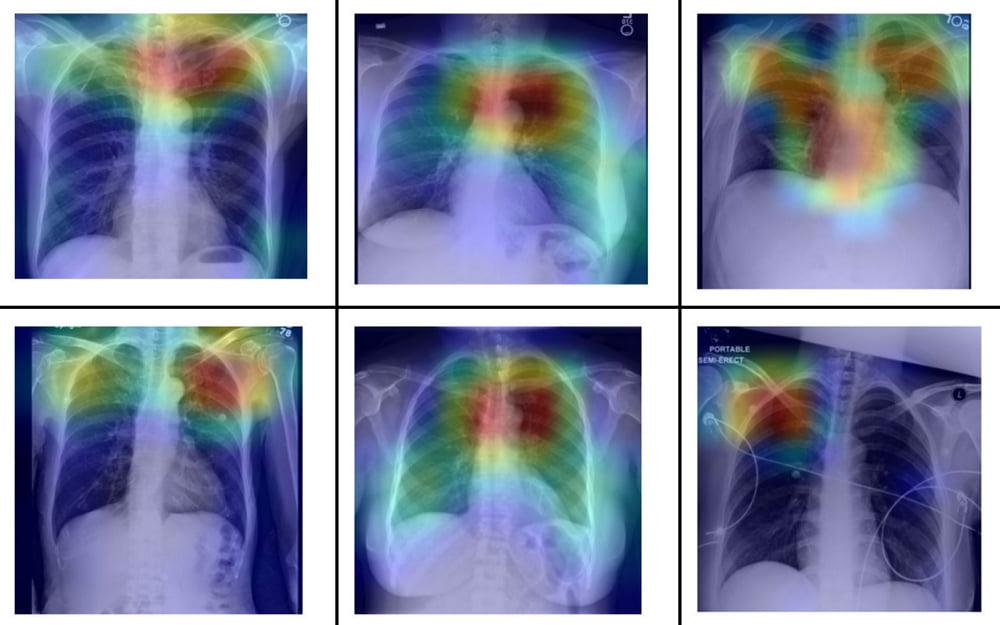 Thorax Röntgenbild mit Farbmarkierungen