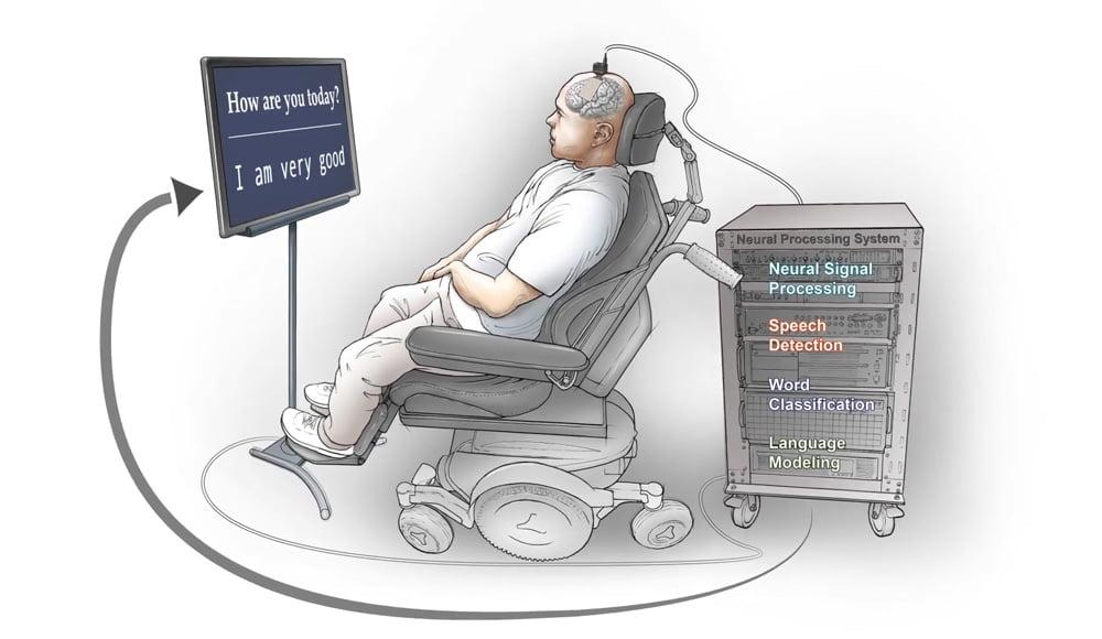 Die Fortschritte bei generierender Künstlicher Intelligenz beschleunigt die Forschung an Gehirnschnittstellen.   Bild: UCSF
