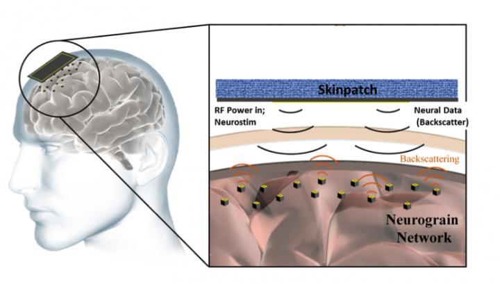 Eine Konzeptzeichnung eines Gehirns mit Mikrochips auf der Obefläche