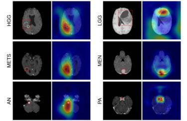 KI in der Medizin: KI-Diagnose erkennt verlässlich Hirntumore
